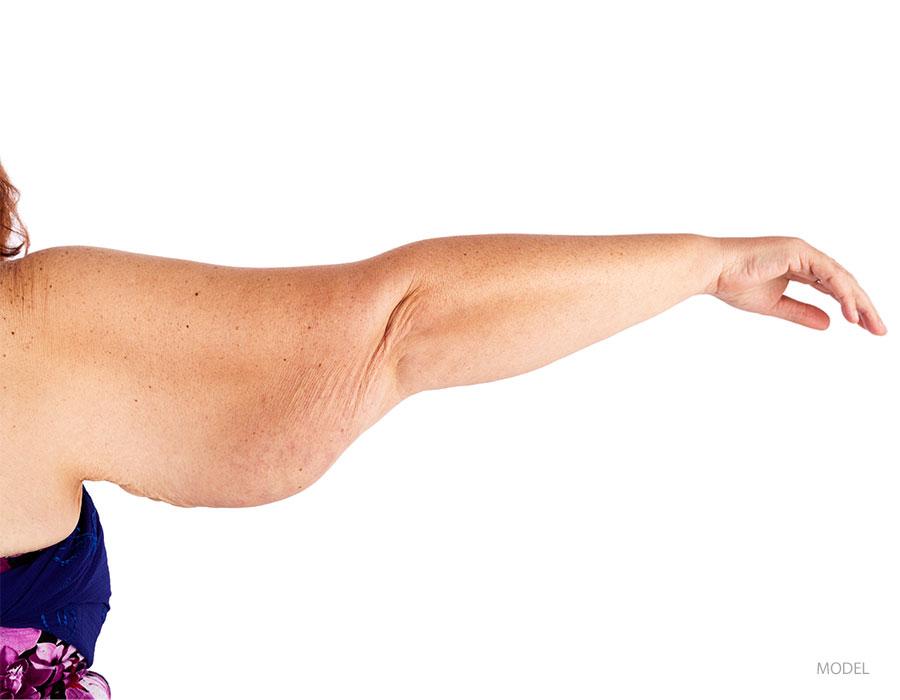arm-lift-img-02